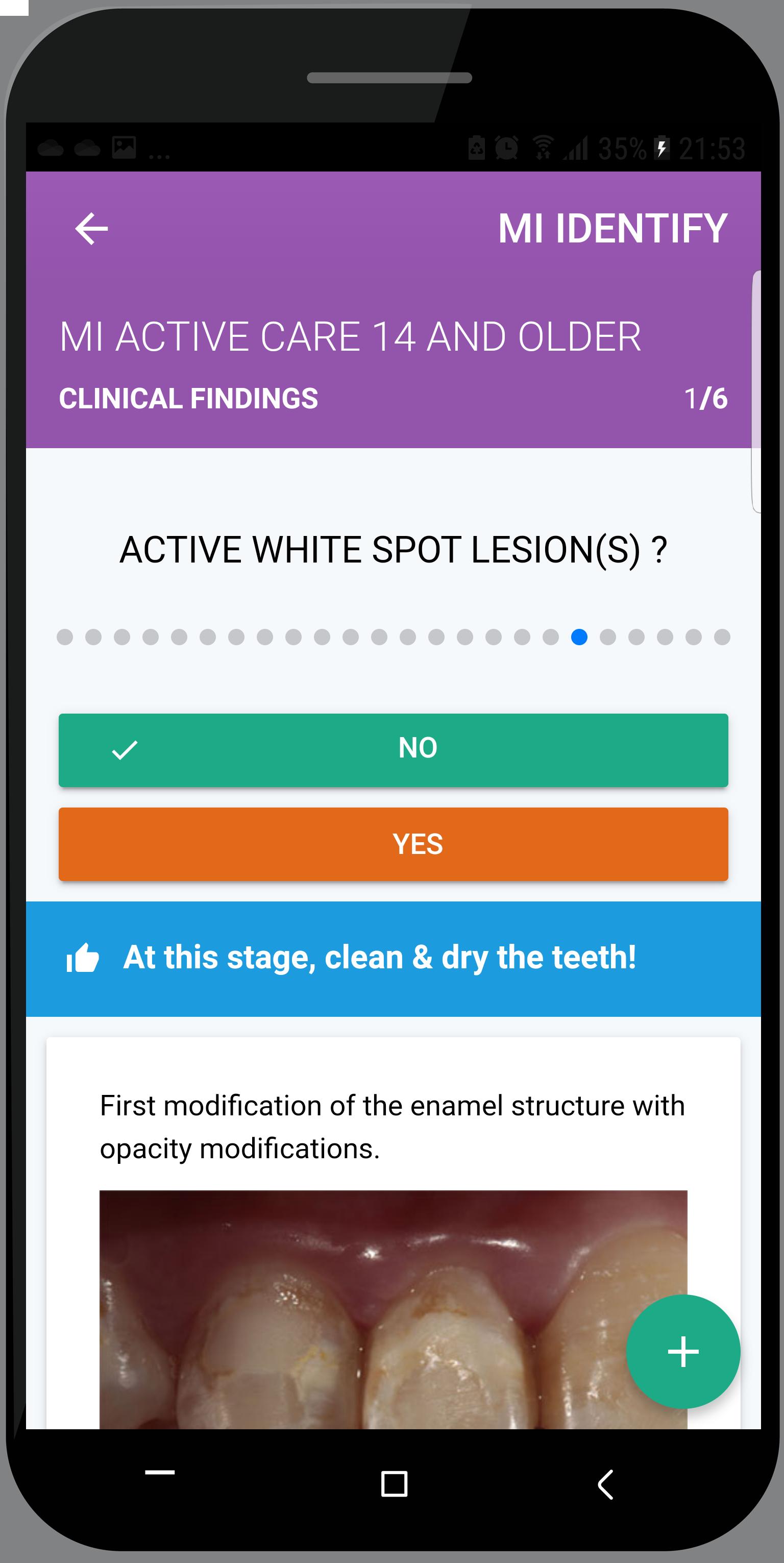 Active white spot lesion item CRA